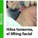 hilos_faciales_Portada